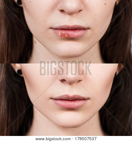 Sore on the female lips before and after treatment.
