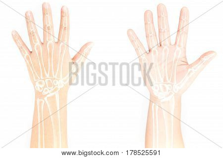 hand bones injury white background hand pain