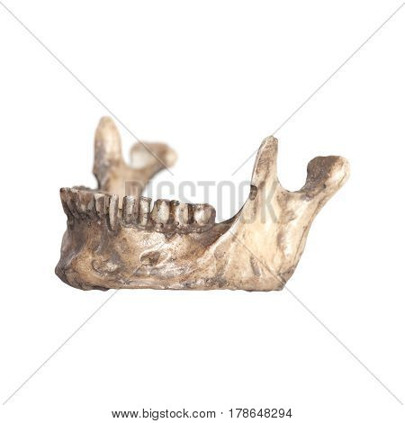 Human Lower Jaw Isolate On A White Background
