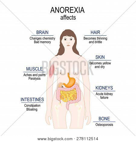 Anorexia Nervosa Is An Eating Disorder. Low Weight. Anorexia Affects. Woman Silhouette With Highligh
