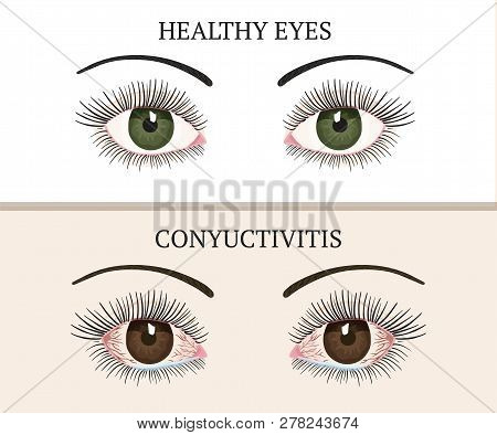 Conjunctivitis Symptoms, Pink Eyes. Eye Disease. Ophthalmology Flat Health Vector Illustration.
