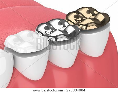 3d Render Of Jaw With Teeth And Three Types Of Onlay Over White