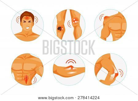 Set Body Parts With Various Types Of Injuries. Concussion, Burn, Bruise, Injury, Fracture And Disloc