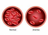 Infographic image, Blood of healthy human and blood vessel with anemia. poster