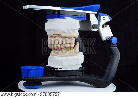 Teeth Ceramics Dentures On High Qualified Printed Acrylic Model In The Articulator In Dental Lab.