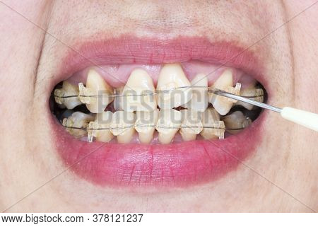 Close-up Mouth Of Crooked Teeth With Braces And Plaque Remover
