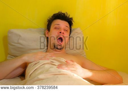 Sleepy Bearded Man With Hangover Wakes Up, Yawns In Bed, Portrait Closeup. Young Man With Headache I
