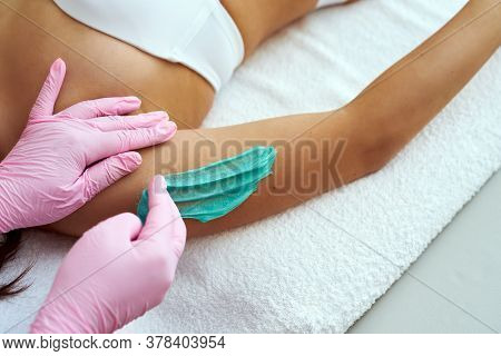 Cosmetologist Is Applying Epilation Paste. The Hair Removal Procedure On The Forearm.