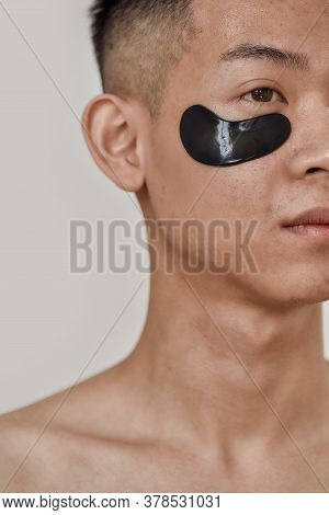 No Puffiness. Close Up Portrait Of Shirtless Young Asian Man With Black Patches Under The Eyes Looki