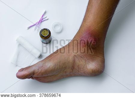 Abscesses Form After Bacteria. Infected Purulent Open Wound On The Mans Foot. Festering Wound Care P