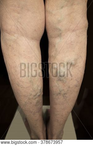 The Old Age And Sick Of A Woman. Varicose Veins On A Legs Of Old Woman On Blue. The Varicosity, Spid