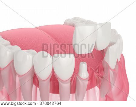 3D Render Of  Jaw With Dental Cantilever Bridge