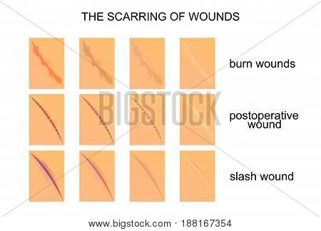 vector illustration of the scarring of wounds