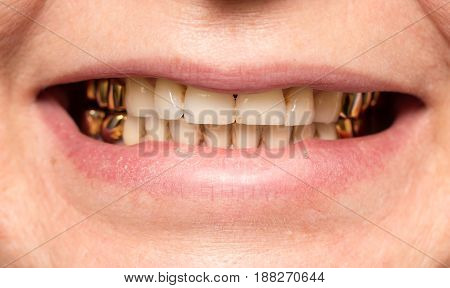 metal teeth in the mouth . A photo