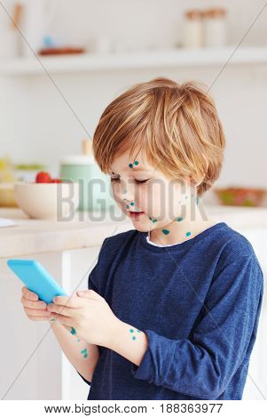 Cute Young Boy, Kid Having Chicken Pox, That Is Cured With Brilliant Green Antiseptic At Home