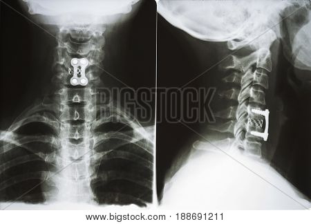 X-ray Of A Surgical Operation