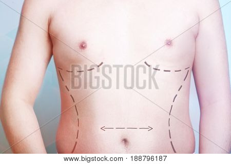 Close-up view of man's body with plastic surgery line markings