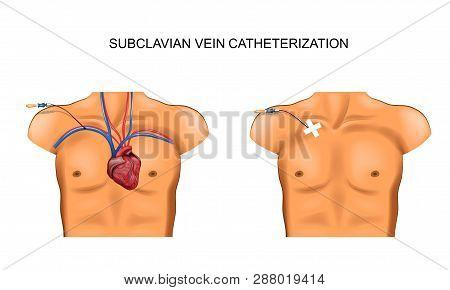 Vector Illustration Of Subclavian Vein Catheterization. Surgery
