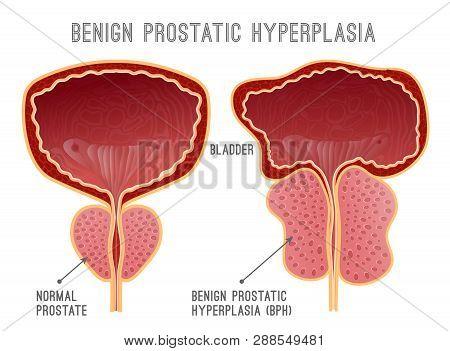 Benign Prostatic Hyperplasia. Prostate Disease Infographic. Urology Medical Image With Urinary Bladd