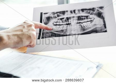Dentist Talking To Male Patient And Presenting Results On Dental X-ray Film About The Problem Of The