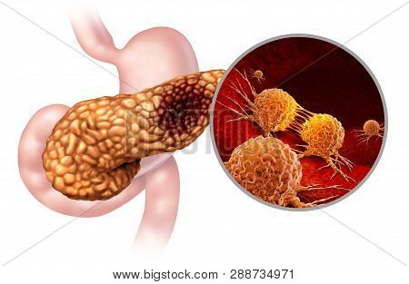 Pancreatic Cancer Anatomy Concept And Pancreas Malignant Tumor Symbol As A Digestive Gland Body Part