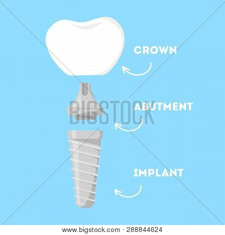 Dental Implant Structure. Parts Of Artificial Tooth