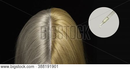 Pipette With Cosmetic Oil In A Circle. Textures Of Colorless And Colored Hair. The Preservation Of C