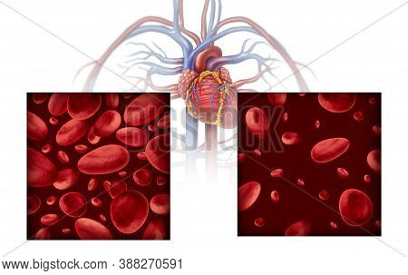 Anemia And Anaemia Medical Diagram Concept As Normal And Abnormal Blood Cell Count And Human Circula