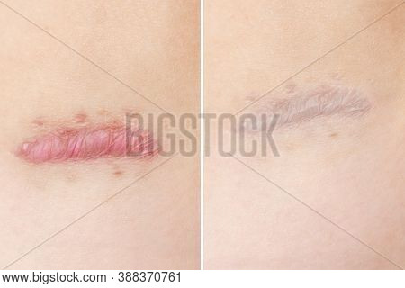 Close Up Of Cyanotic Keloid Scar Caused By Surgery And Suturing, Skin Imperfections Or Defects Befor