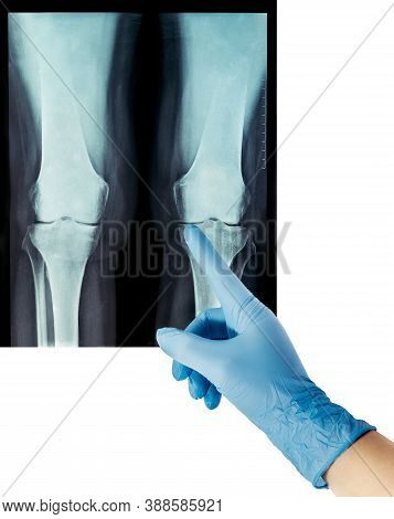 X-ray Rheumatic Diseases And Knee Rheumatoid Arthritis Two Legs