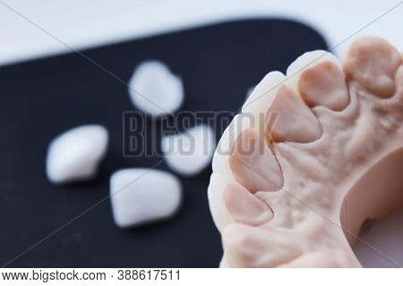 Ceramic Dental Veneers. Close-up View Of Dental Layout Of Lower Row Of Teeth Prothesis On Artificial