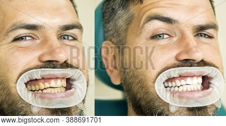 Teeth Yellow Vs White, Before Or After Whitening. Man With Isolated Background Touching Mouth With P