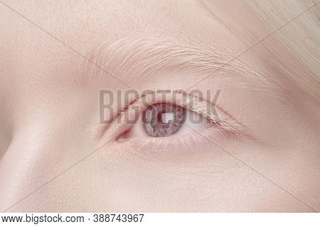 Eye. Close Up Portrait Of Beautiful Albino Woman Isolated On White Studio Background. Beauty, Fashio