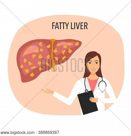 Fatty Liver Disease With Doctor Vector Illustration. Human Liver Damage In Flat Design. Healthcare C
