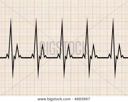 Cardiogram3