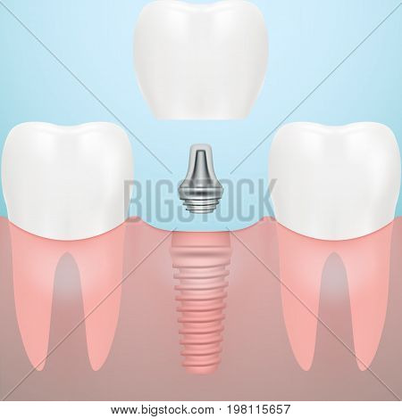 Human Teeth And Dental Implant Isolated On A Background. Vector Illustration. Stomatology. Creative Medical Concept