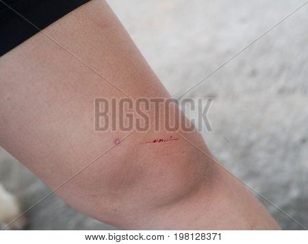 Knee woman injury a little hurt asian skin