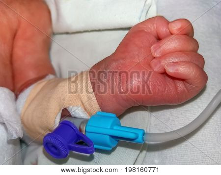 Peripheral intravenous catheter or IV Cannula in the vein of a newborn baby hand in neonatal intensive care unit at children's hospital