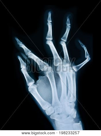 the image X ray of a human hand.