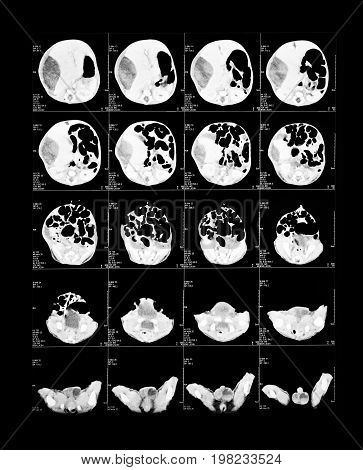 X-ray image of the brain computed tomography (brain)