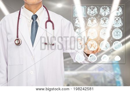 Radiologist doctor touching film brain MRI at hospital.
