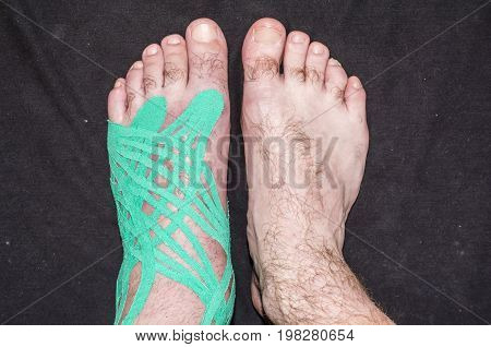 Compare Foot With Taping Slices And Healthy.