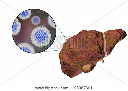 Liver with Hepatitis C infection on the stage of liver cirrhosis and close-up view of Hepatitis C Virus, HCV, 3D illustration