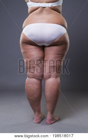 Overweight woman with fat legs and buttocks obesity female body on gray background