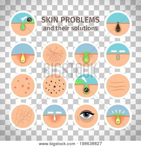 Skin problems. Facial treatments, face washing and problem correction isolated on transparent background vector illustration