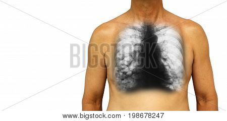 Bronchiectasis .  Human Chest With X-ray Chest Show Multiple Lung Bleb And Cyst Due To Chronic Infec