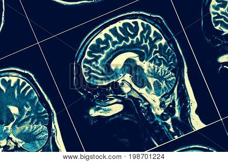 Sagittal section of the brain. Professional medical check