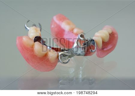 Clasp denture with a metal arc and artificial teeth