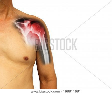 Human shoulder with x-ray show fracture at neck of humerus ( Arm bone ) . Isolated background . Blank area at right side .