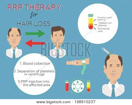 Effective treatment age of hair loss in men. Platelet rich plasma injection. PRP therapy process.  Meso therapy. Hair growth stimulation.